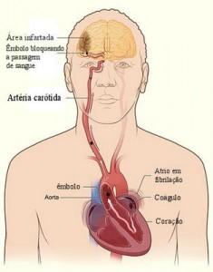 O que é um AVC Hemorrágico?