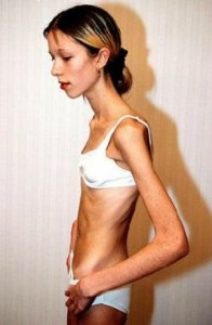 O que é anorexia?