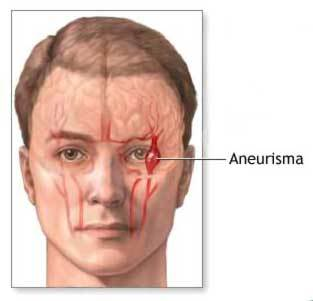 O que é Aneurisma Cerebral?