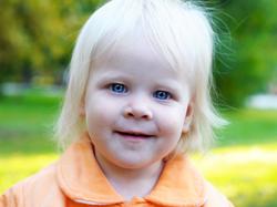 O que é Albinismo?