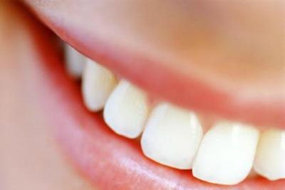 O que é Dente?
