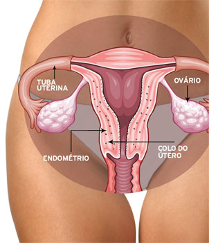 O que é Endometriose?